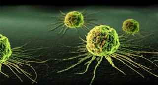 Stunning breakthrough: Alarming cancer discovery