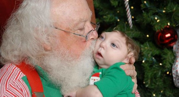 Holiday miracle: Baby with partially developed brain pays a visit to Santa