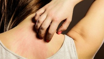 Scientists shocked by skin cancer discovery