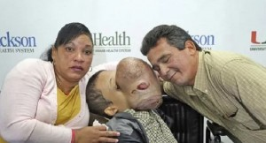 Young boy develops huge 10-pound tumor on face